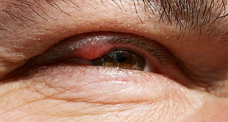 Nhọt mụn mọc ở bờ mi mắt- Phân biệt mụn nhọt và ung thư (Nguồn ảnh: Internet)