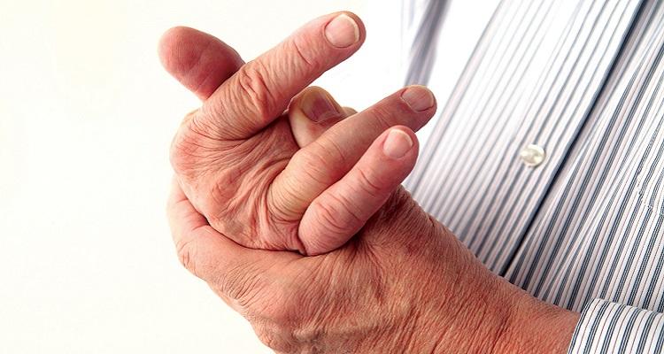 Triệu chứng tê tay ở người bị bệnh phong tê thấp (Nguồn ảnh: internet)