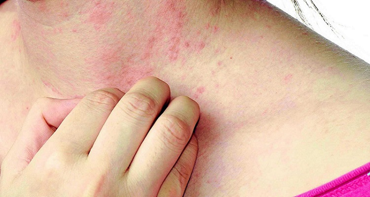 Gãi có thể giảm cảm giác ngứa nhưng cũng khiến bệnh nấm da lây lan từ bộ phận này sang bộ phận khác. (Nguồn ảnh: Internet)