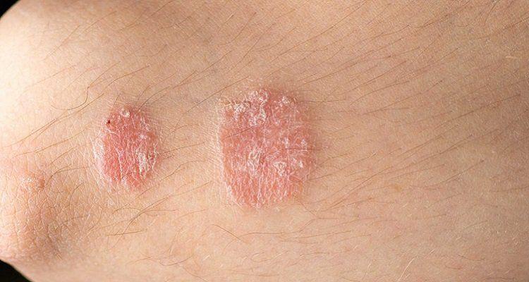 Bệnh nấm thân phổ biến ở các nước nhiệt đới.- chữa bệnh nấm da hiệu quả.(Nguồn ảnh: Internet)
