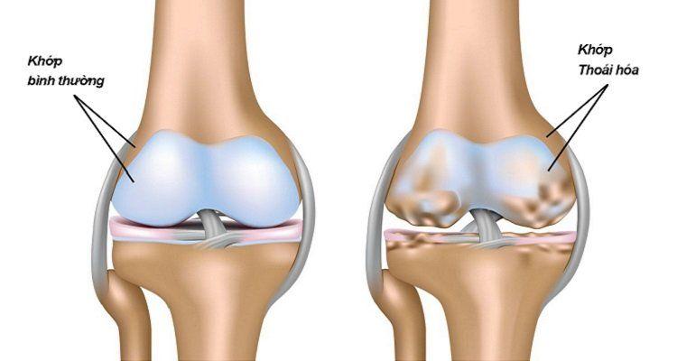Thoái hóa khớp cũng có biểu hiện đau nhức xương khớp. (Nguồn ảnh : Internet)