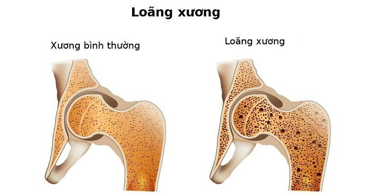 Biểu hiện đau nhức xương khớp của bệnh loãng xương (Nguồn ảnh: Internet)