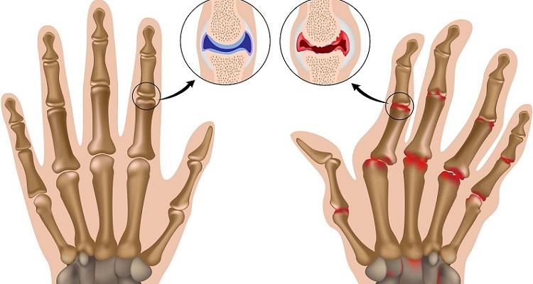 Sự khác nhau giữa khớp của bình thường và khớp của người bị viêm da khớp (Nguồn ảnh: Internet)