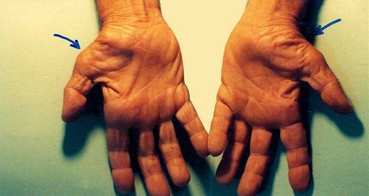 Triệu chứng của hội chứng ống cổ tay ( Nguồn ảnh: Internet)