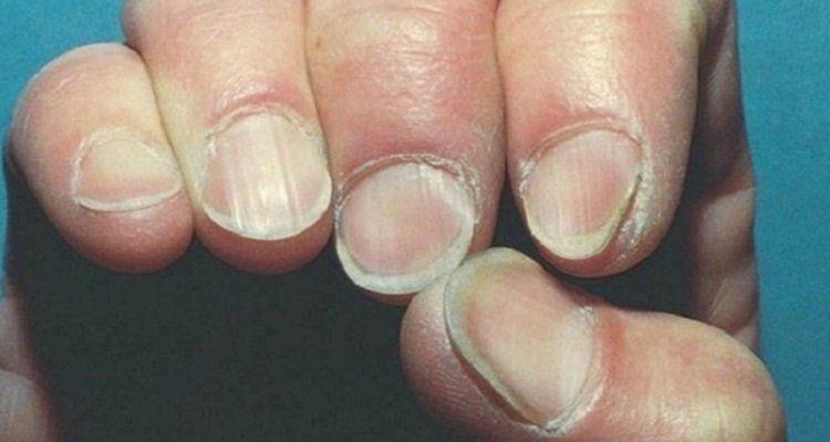 Phát hiện bệnh gan qua móng tay. (Nguồn ảnh: internet)