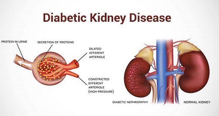 Đường huyết cao ảnh hưởng đến chức năng gan thận (Nguồn ảnh: Internet)