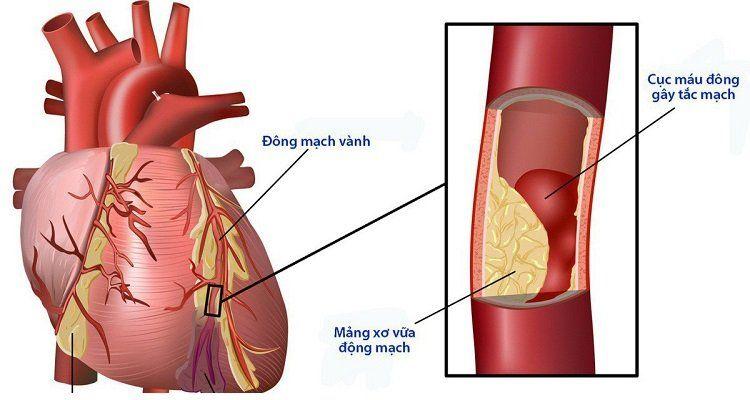 Biến chứng mạch máu lớn của bệnh đái tháo đường ( Nguồn ảnh: Internet)