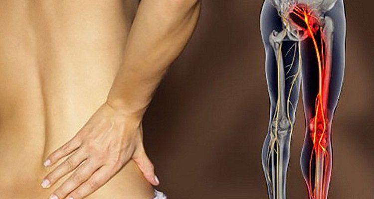 Đau lưng do thoái hóa nếu không điều trị sớm có thể gây đau thần kinh tọa (Nguồn ảnh: Internet)