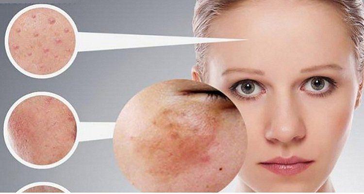 Rối loạn nộ tiết tố nữ có thể gây nám da, lão hóa da. (Nguồn ảnh: Internet)