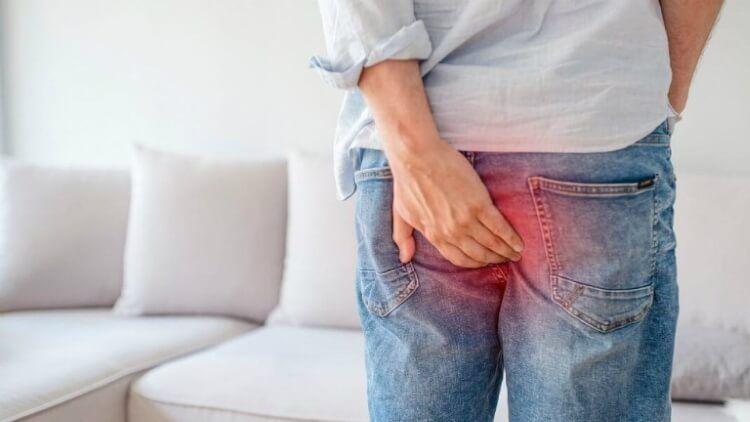 Bệnh trĩ chia thành nhiều dạng trĩ theo cấp độ lòi ra ngoài của búi trĩ.