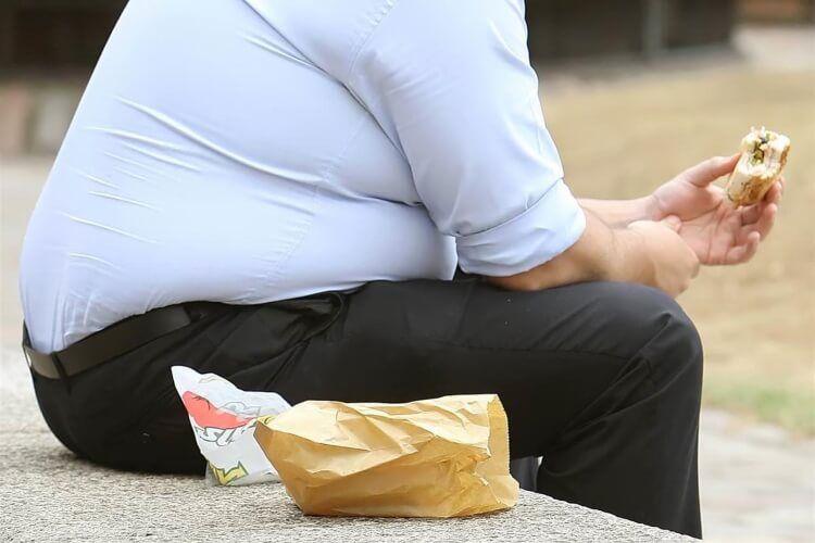 Thừa cân, béo phì, lười vận động là một trong những nguyên nhân mắc trĩ.