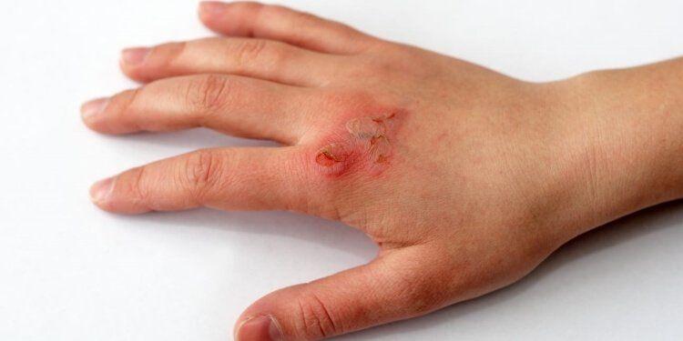 Tránh làm các bọng nước bị vỡ, dễ gây nhiễm trùng.