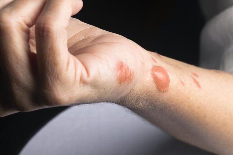Mẹo chữa bỏng tại nhà chỉ áp dụng với những vết bỏng nhẹ.