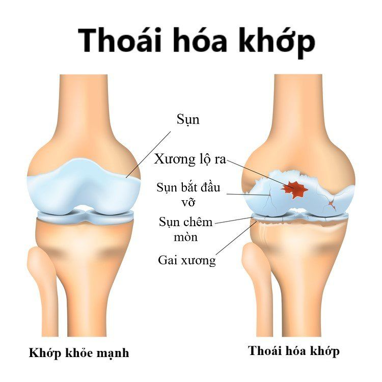thoai-hoa-khop-o-nguoi-cao-tuoi-daiphuan.vn